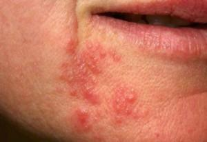 pictures-of-perioral-dermatitis